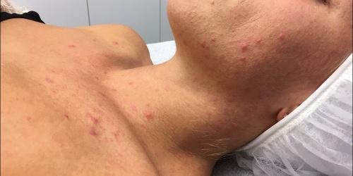 acne behandeling Aqua Dôme Maarkedal