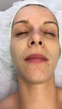 acne behandeling aqua dome maarkedal oudenaarde