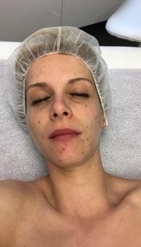 acne behandeling maarkedal oudenaarde ronse